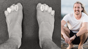 BFM 30: Toe Spacers With The Barefoot Podiatrist